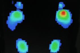 Les neuropathies périphériques chez le patient diabétique ...
